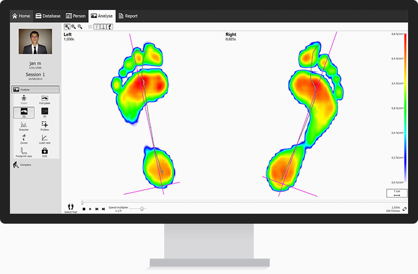 A screen showing biomechanical assessment results