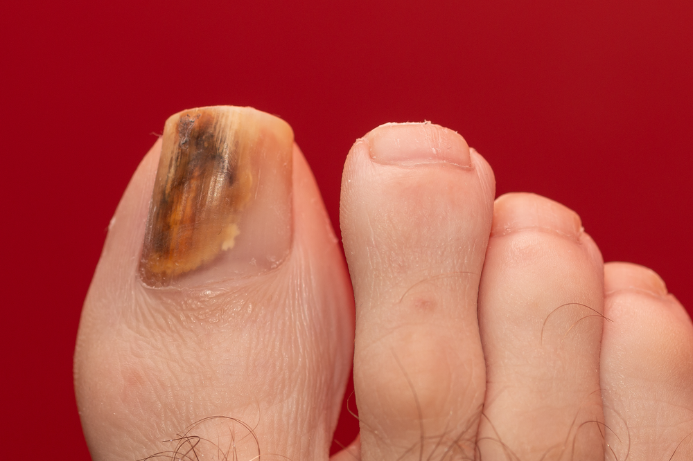 A foot with a discoloured toenail
